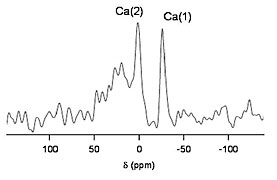 Example of an NMR spectrum.