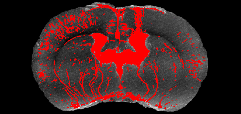 Actual MRI cross-section of the mouse brain, showing injection site