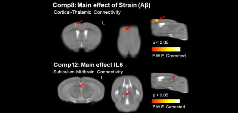 Resting state functional MRI at 11.1T revealed the effects on brain microstructures and intrinsic activity due to β-amyloid (Aβ) plaque deposits and inflammation, as indicated by the presence of the inflammatory protein interleukin-6 (IL6).