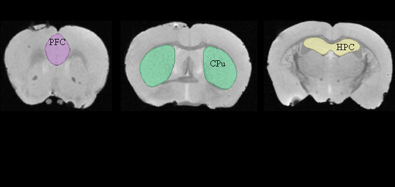 MRI images of mice brains, with regions related to mood segmented out: the prefrontal cortex (PFC) and caudate putamen CPu).