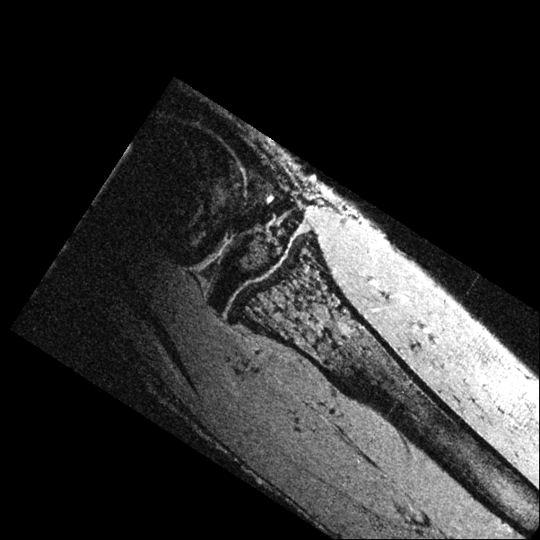 in vivo image of a mouse leg bone.