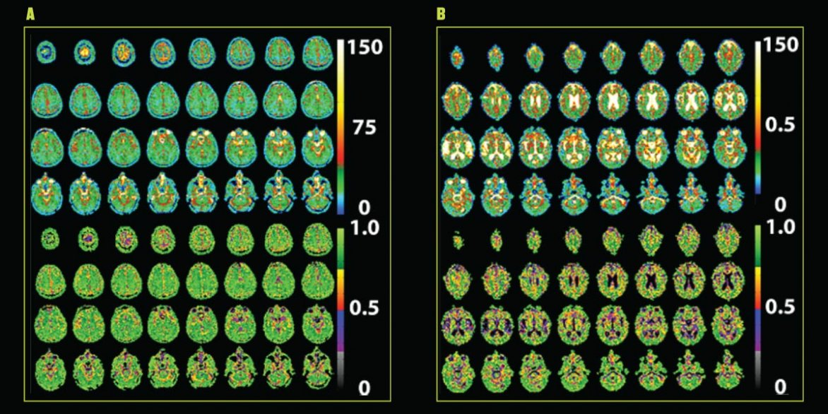 Tissue sodium concentration maps of a 24-year-old (left) and a 73-year-old (right) made in the 9.4-tesla MRI show differences in cerebrospinal fluid (white) but little variance in brain tissue (green) despite age.