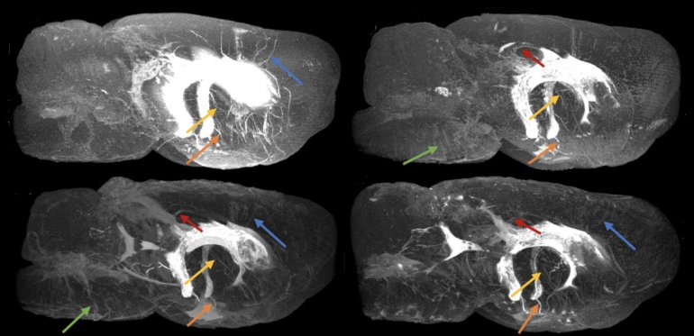 MRI images of the perivascular networks in the brains of four rats. Vessels with perivascular spaces (PVS) that appear to be common in different rats are highlighted using colored arrows.