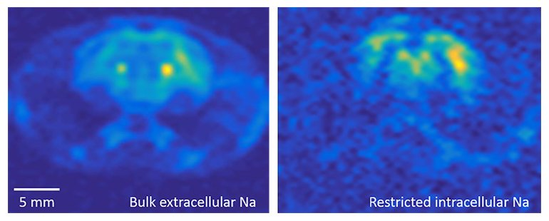 These 3D MRI images of sodium in a rat brain, acquired in the MagLab's 21.1-tesla MRI scanner, illustrate the detail the instrument can capture. The image at right shows intracellular sodium, while the image at left shows extracellular sodium.